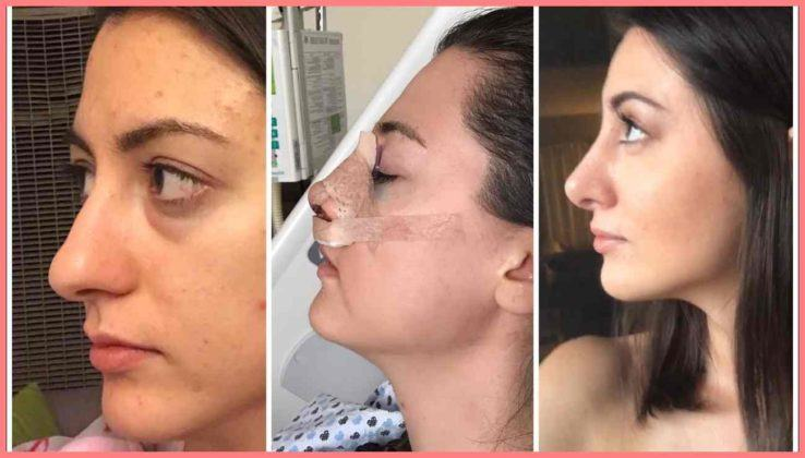 1 6 months rhinoplasty update month by month nose job recovery