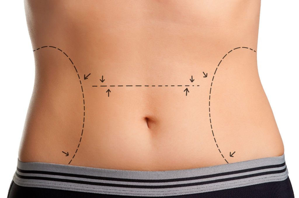 Does a Tummy Tuck Remove Stretch Marks? - plasticsurgerystore.com