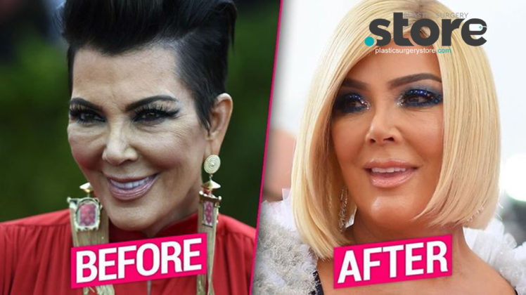 KRIS JENNER DEBUTS BRAND NEW FACE AFTER