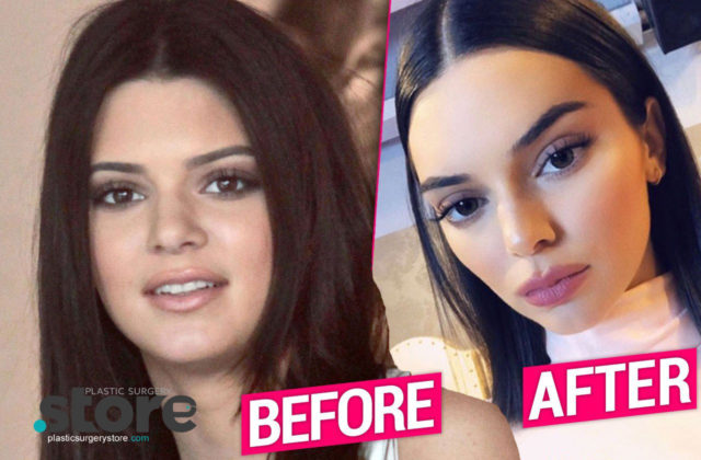 Kendall Jenner Unrecognizable After Plastic Surgery Makeover