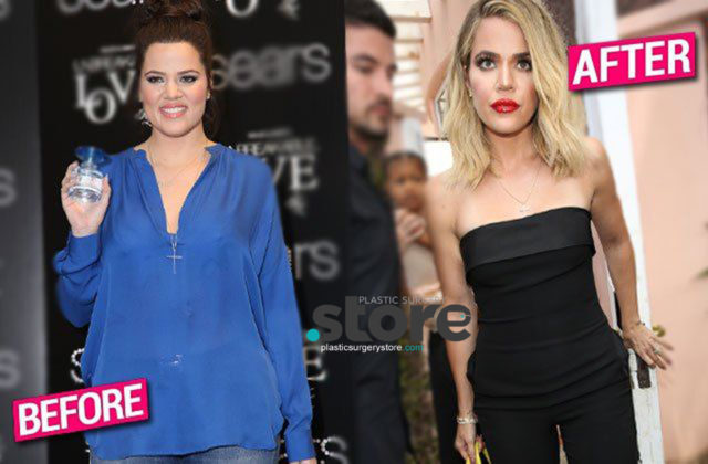 Khloe Kardashian Skinny Unrecognizable Before After
