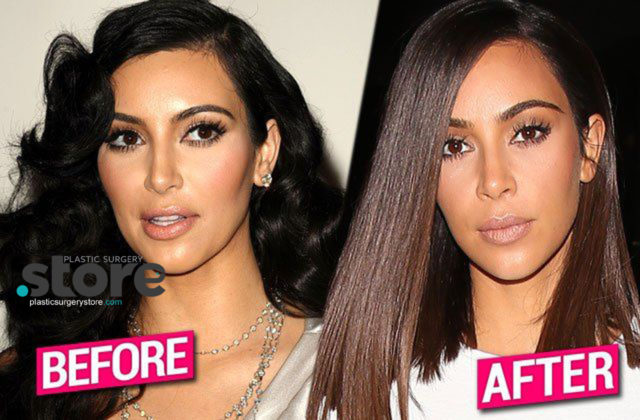 Kim Kardashian Plasic Surgery Fake Face