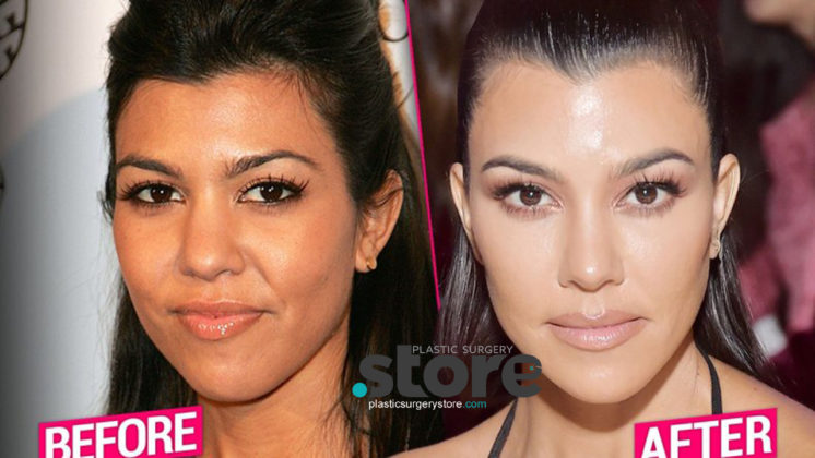 Kourtney Kardashians Massive Plastic Surgery
