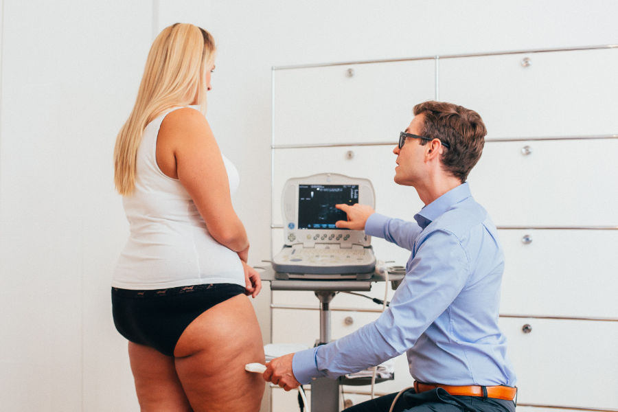 Liposuction for Lipedema and Lymphedema - plasticsurgerystore.com