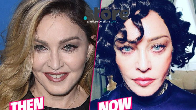 Madonnas Shocking Plastic Surgery