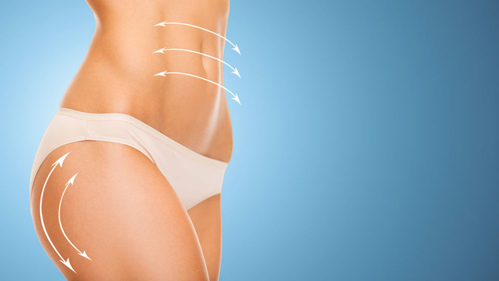 Risks of Liposuction and How to Avoid Complications - plasticsurgerystore.com