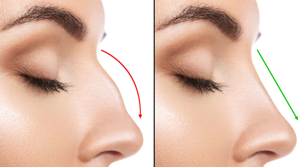 Why I Got This 15 Minute Nose Job - Macro Beauty - plasticsurgerystore.com