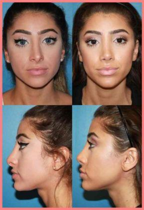are you searching for the best rhinoplasty surgeon in san diego dr