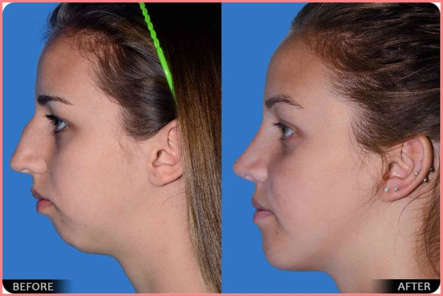 dr derek steinbacher rhinoplasty reconstructive nasal obstruction