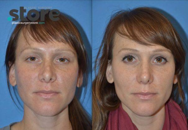how much does rhinoplasty cost