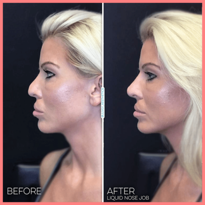 juvly aesthetics painless non surgical liquid nose job