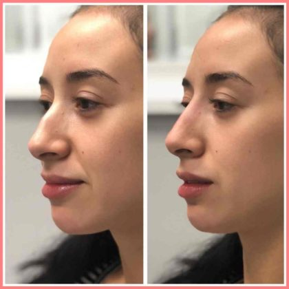 liquid nose job must know information face forward aesthetics