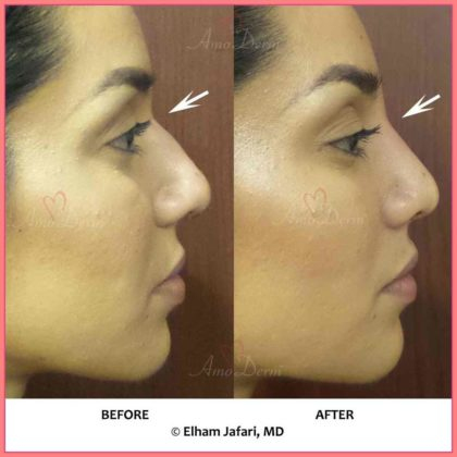 non surgical nose job liquid rhinoplasty by dr jafari in irvine