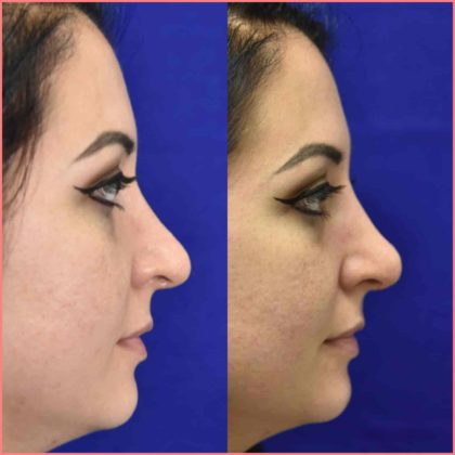 non surgical rhinoplasty before after pasadena facial plastic 1
