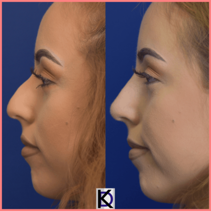 non surgical rhinoplasty before after pasadena facial plastic