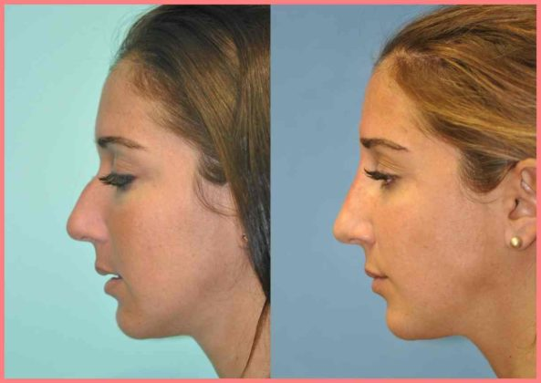 non surgical rhinoplasty photos chevy chase md patient 11935