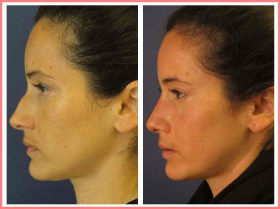 nyc rhinoplasty nose surgery before and after pictures staten island