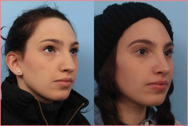rhinoplasty faces first
