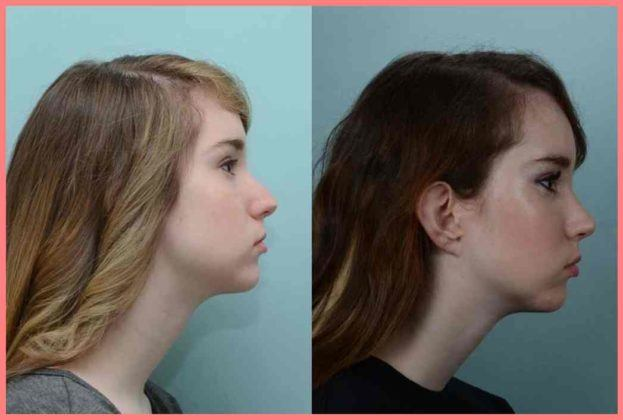 rhinoplasty johns hopkins facial plastic and reconstructive surgery