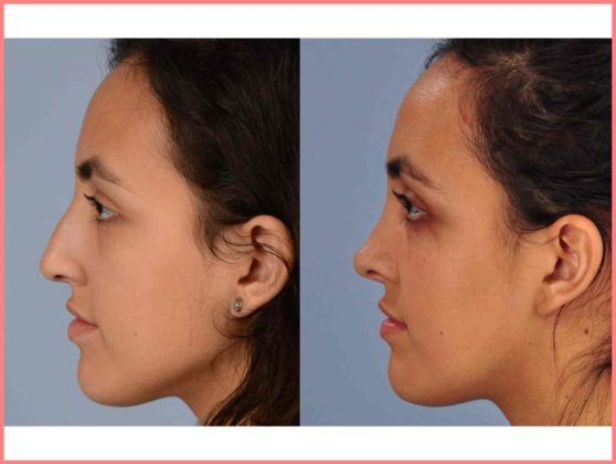 rhinoplasty nose job and septoplasty dallas pediatric plastic