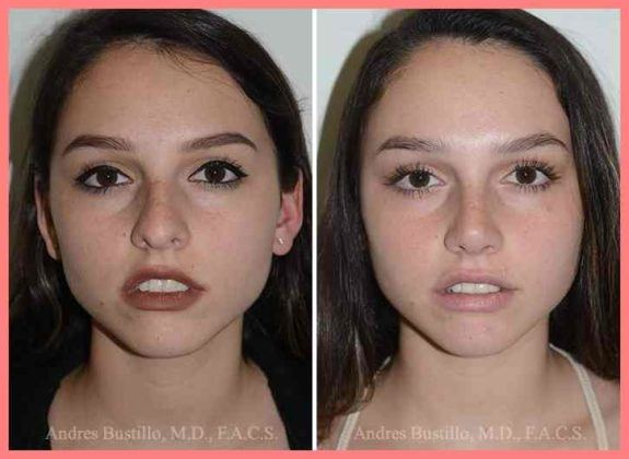 rhinoplasty photos miami fl patient 16883