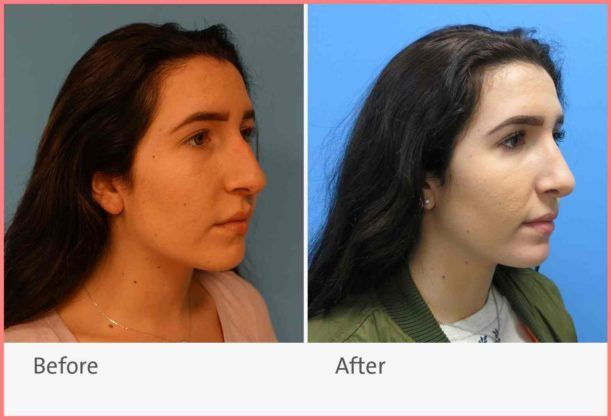 rhinoplasty plastic and reconstructive surgery northwell health