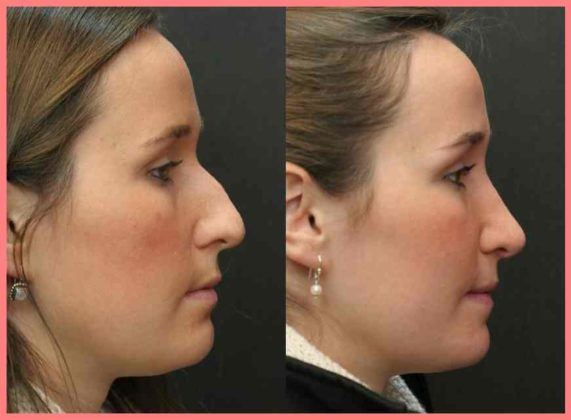 rhinoplasty worcester boston medford massachusetts