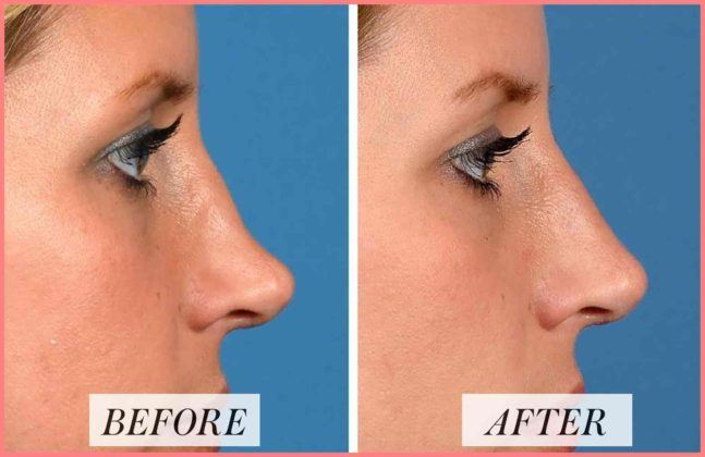 rhinoplasty near me