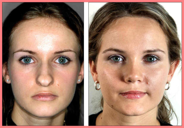 what is rhinoplasty