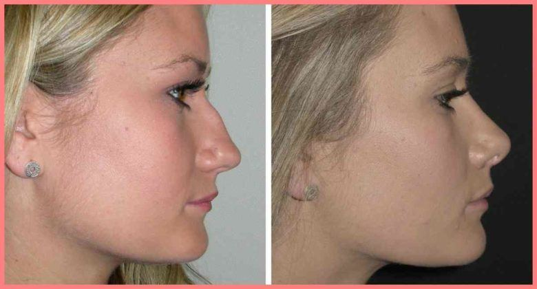 what is the cost of a complete rhinoplasty in india