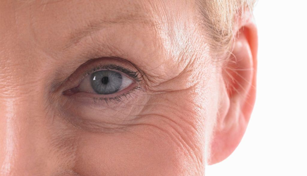 What is the recovery period following a lower blepharoplasty?