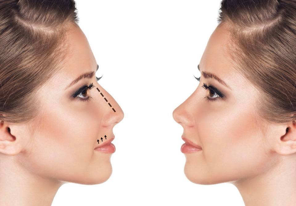 Non-Surgical Rhinoplasty - Nose job Before and After