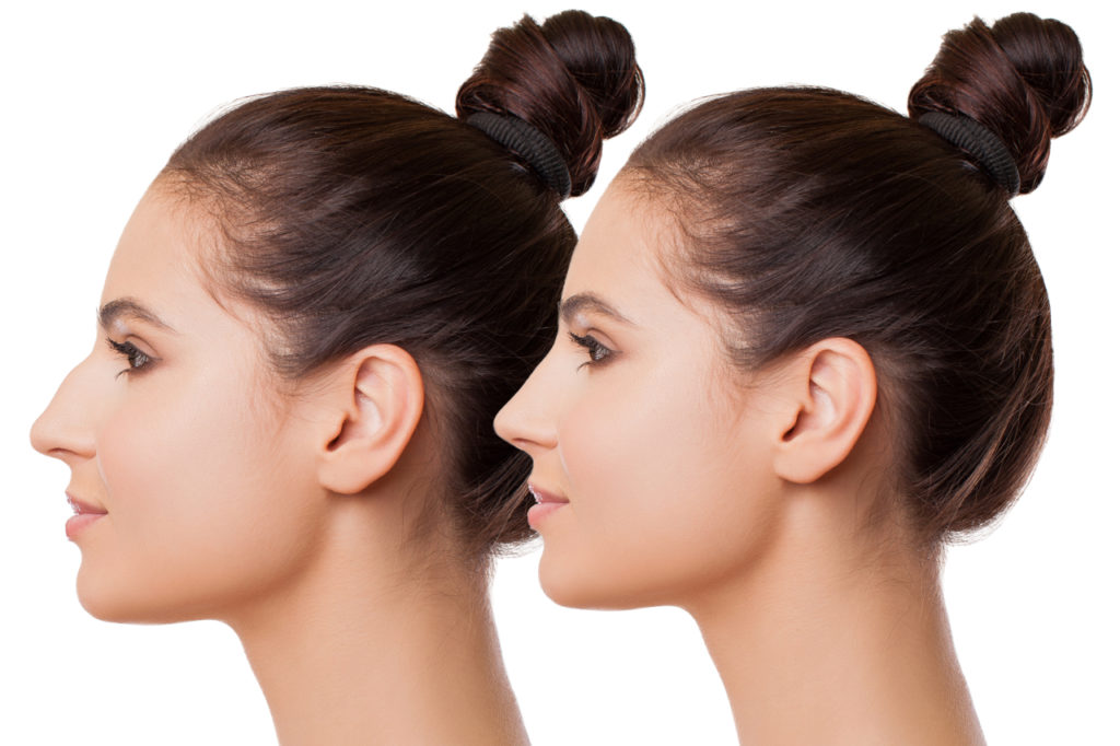 Rhinoplasty Recovery The Right Way