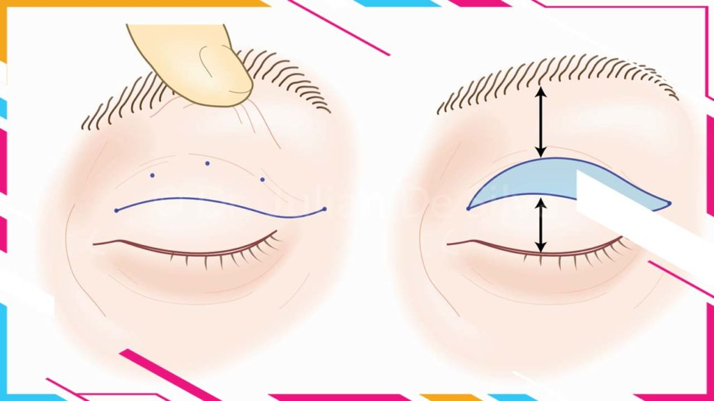 What is the best technique for an upper blepharoplasty