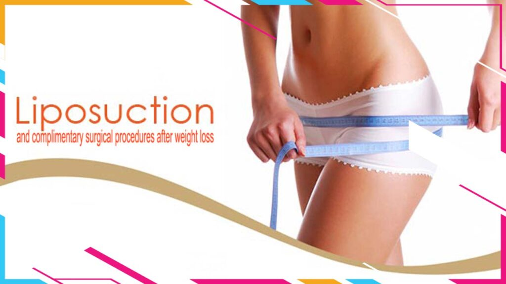 Liposuction and complimentary surgical procedures after weight loss